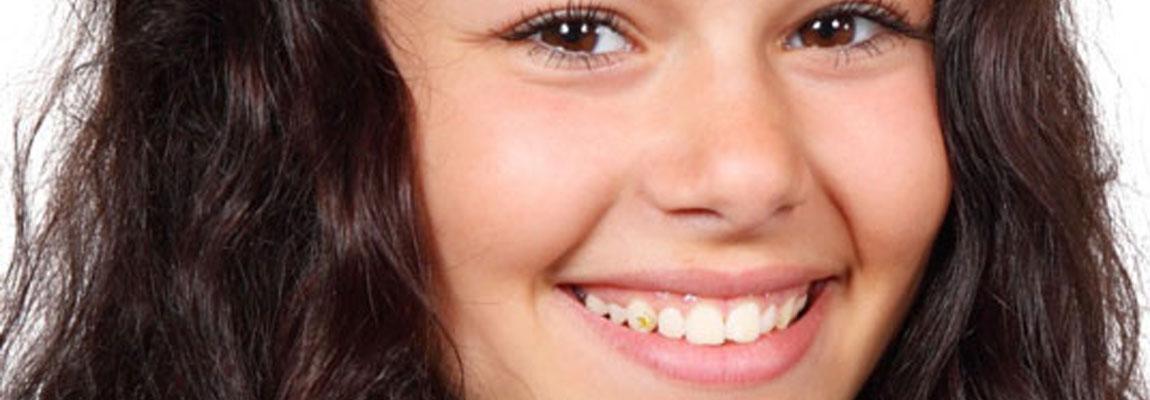 sider_tandsmykke